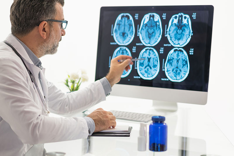 Neuroreader is the best tool for MRI scans and brain research